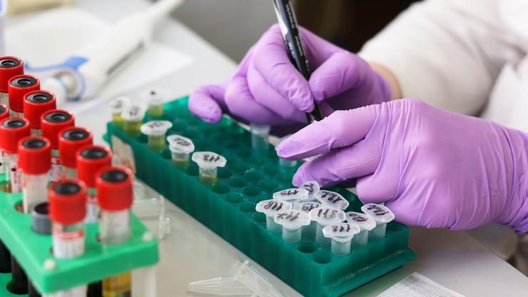 Ministerstwo Zdrowia skasowało 10 procent testów na koronawirusa. Przez błąd laboratorium