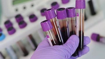 Grupa krwi może zwiększać ryzyko zarażenia koronawirusem