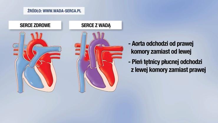 Choroba Jasia to Przełożenie wielkich pni tętniczych