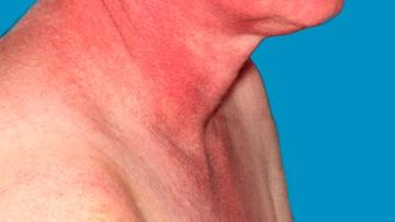 """""""Działa, jest bezpieczny i skuteczny"""". Testy kliniczne nowego leku na atopowe zapalenie skóry"""